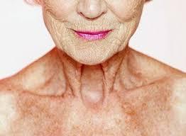 Solution naturelle contre le vieillissement de la peau